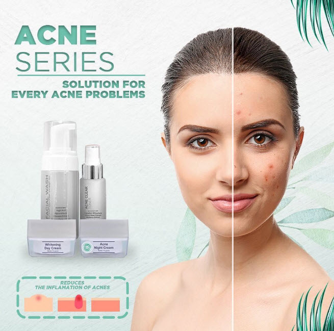 manfaat ms glow acne
